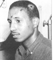Bernard LaFayette, SNCC & SCLC. Photo taken June 1963, Selma Alabama, after a brutal Klan beating that almost killed him. That same night they gunned down Medgar Evers in his driveway